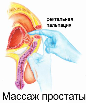 Массаж предстательной железы