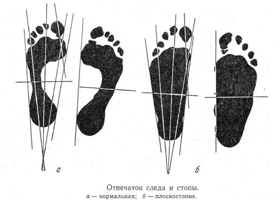 Массаж при плоскостопии